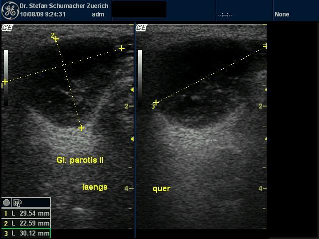 Tumor Der Ohrspeicheldrüse Erfahrungsbericht